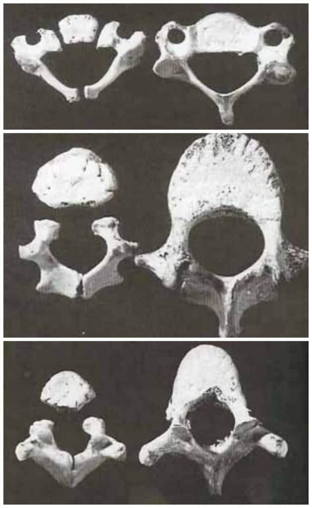 Vertebrae age 1 and 6